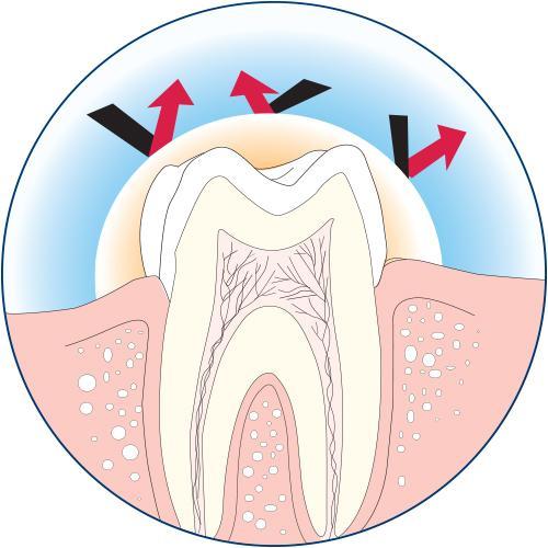 Zarosen Desensitizing Cavity Varnish and Dentinal Tubuli Seal